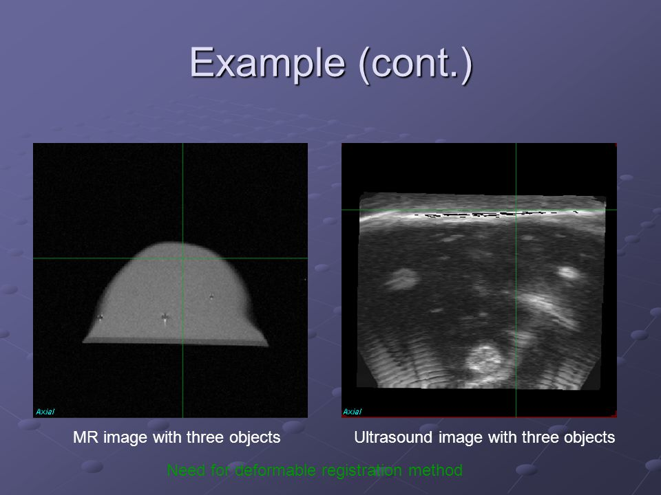Example (cont.) MR image with three objectsUltrasound image with three objects Need for deformable registration method