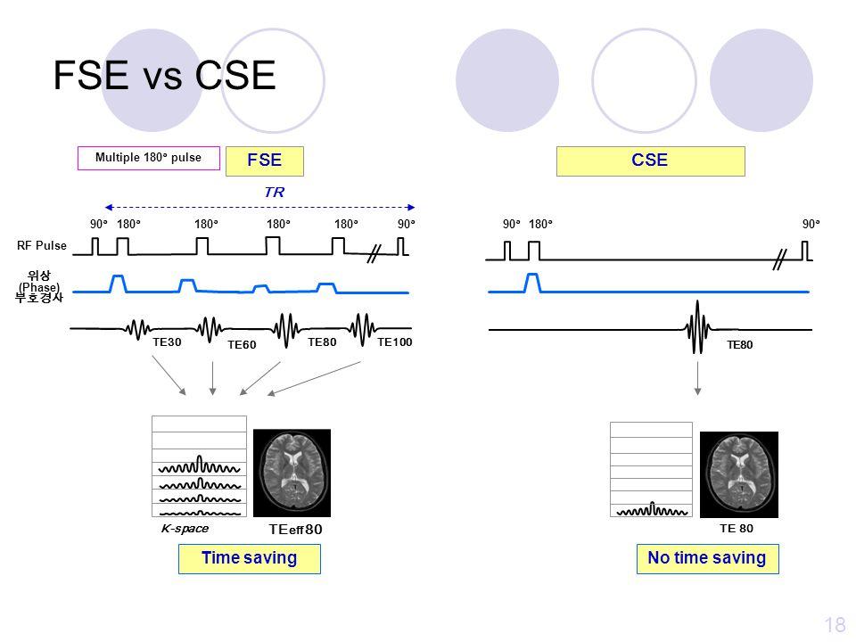 FSE vs CSE (CPMG) 17 90°180° 90° TE30TE60TE80TE100 90°180° 90° TE30 TE60 TE80TE100 CSE (CPMG)FSE TR 위상 (Phase) 부호경사 RF Pulse Multiple 180° pulse TE30 (PD)TE60TE80 (T2WI) Single image Time saving K-space TE eff 80 Multiple image No time saving