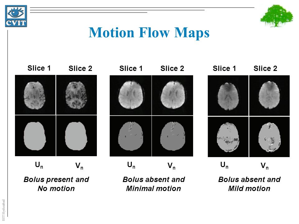 IIIT Hyderabad Motion Flow Maps Slice 1 Slice 2 UnUn VnVn Bolus present and No motion Slice 1 Slice 2 UnUn VnVn Bolus absent and Minimal motion Slice 1 Slice 2 UnUn VnVn Bolus absent and Mild motion