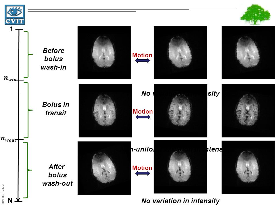 IIIT Hyderabad N 1 Motion Before bolus wash-in After bolus wash-out Bolus in transit No variation in intensity Non-uniform Variation in intensity No variation in intensity