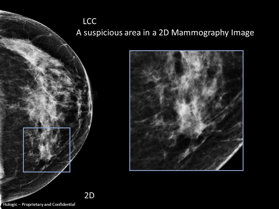 2D Mammography A suspicious region 3D Mammography (slice 17) A highly suspicious region Hologic – Proprietary and Confidential EXAMPLE same tissue