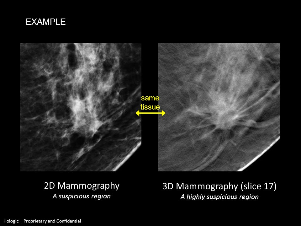 Hologic – Proprietary and Confidential EXAMPLE same tissue 2D Mammography A worrisome region 3D Mammography (slice 22) A very worrisome region