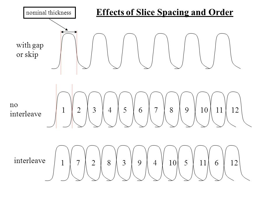 nominal thickness 127891011123456 174105116122839 with gap or skip no interleave interleave Effects of Slice Spacing and Order