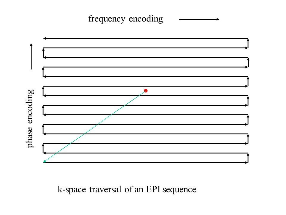 k-space traversal of an EPI sequence frequency encoding phase encoding