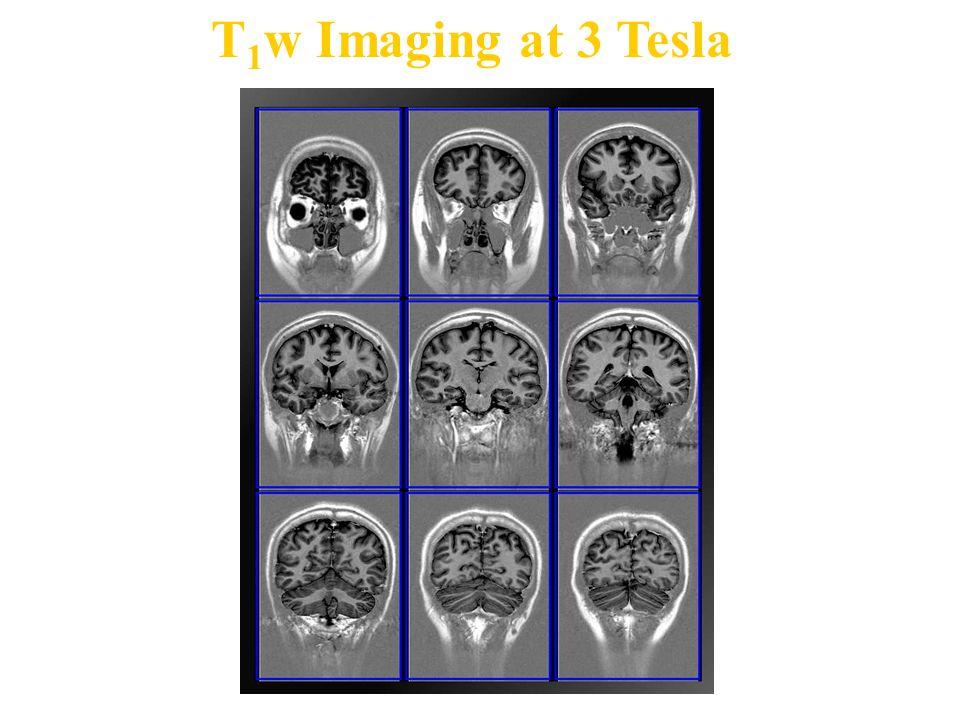 T 1 w Imaging at 3 Tesla