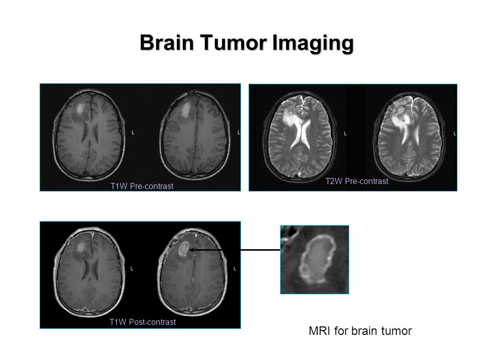 Brain Tumor Imaging T1W Pre-contrast T1W Post-contrast T2W Pre-contrast MRI for brain tumor