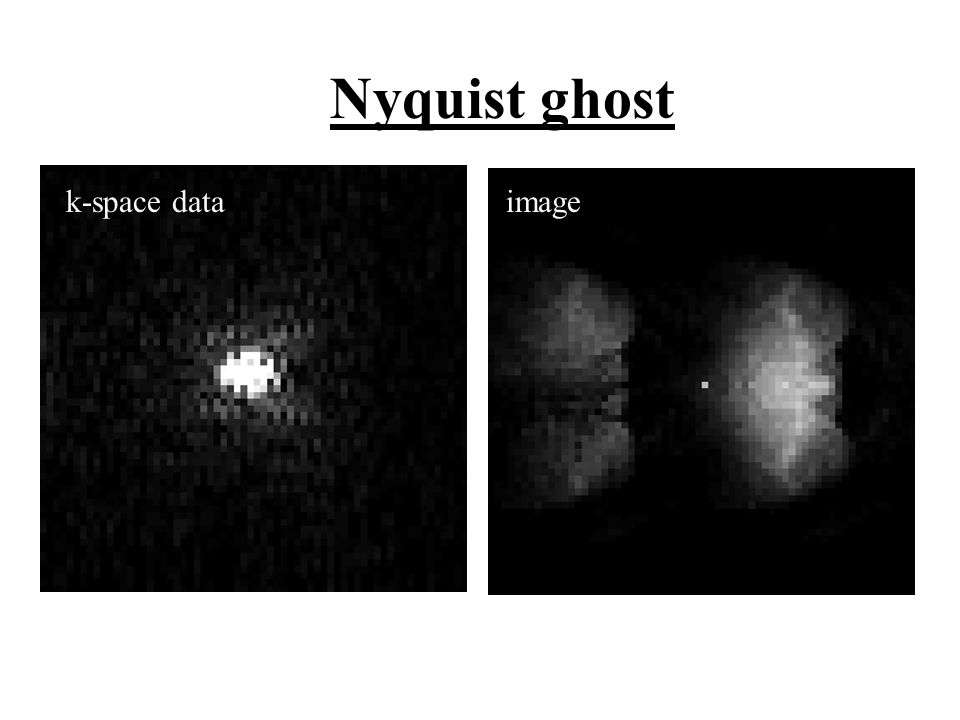 k-space dataimage Nyquist ghost