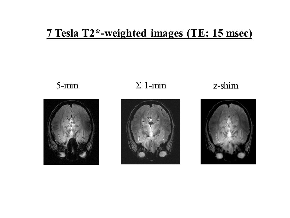 7 Tesla T2*-weighted images (TE: 15 msec) 5-mm  1-mm z-shim