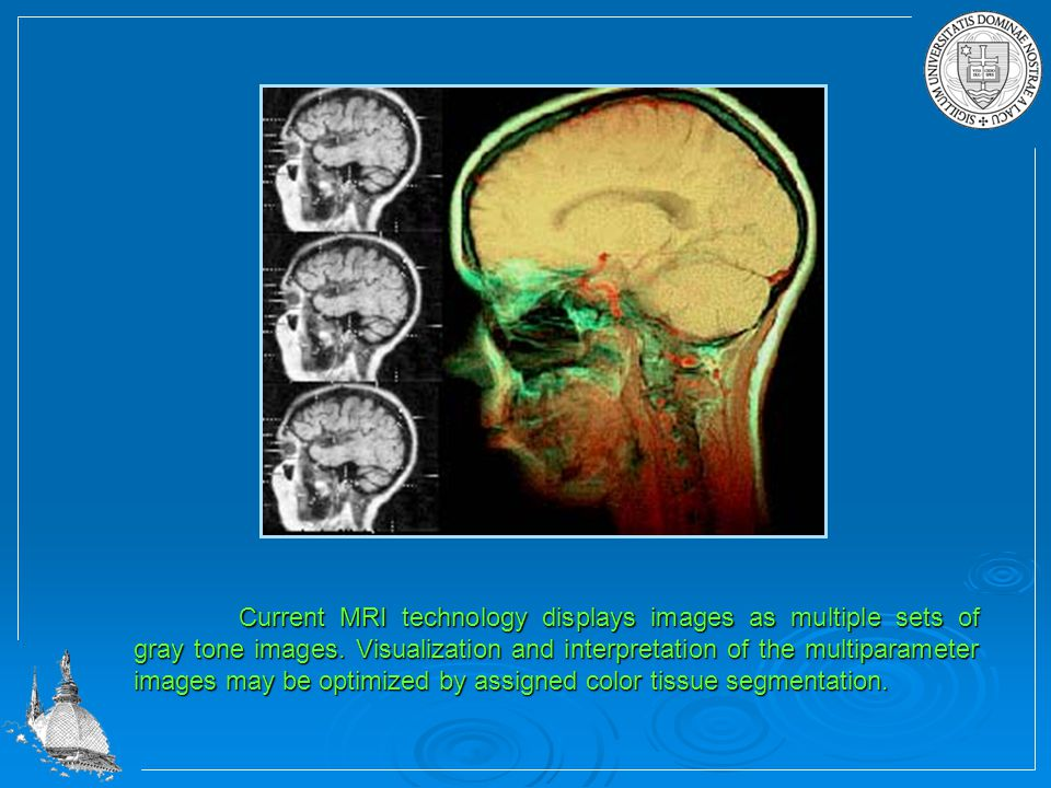 Current MRI technology displays images as multiple sets of gray tone images.