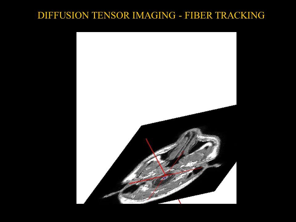 DIFFUSION TENSOR IMAGING - FIBER TRACKING