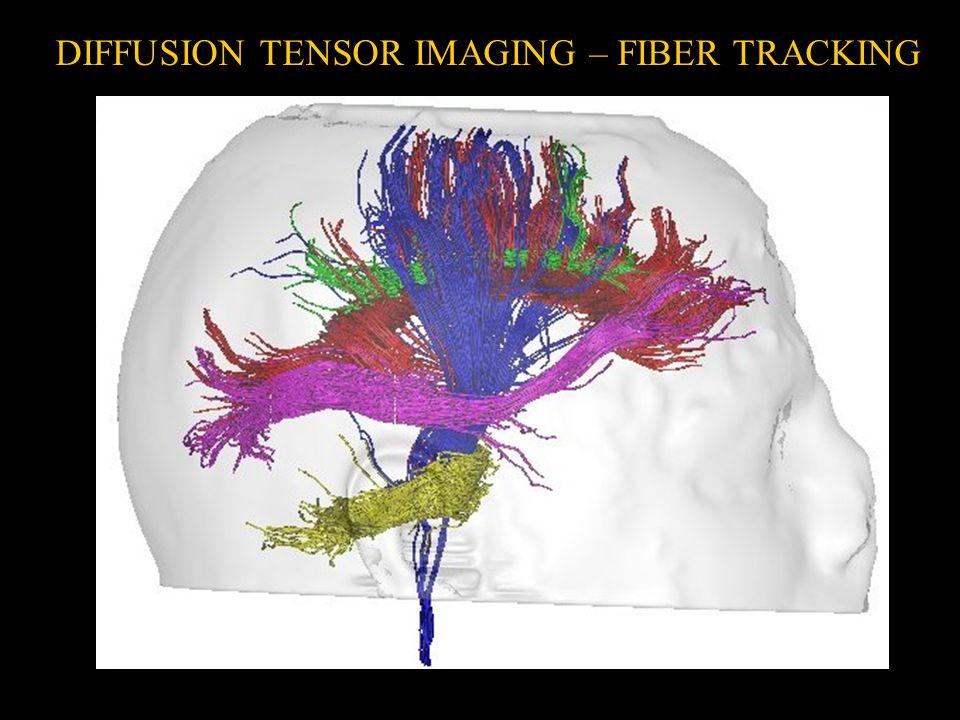 DIFFUSION TENSOR IMAGING – FIBER TRACKING