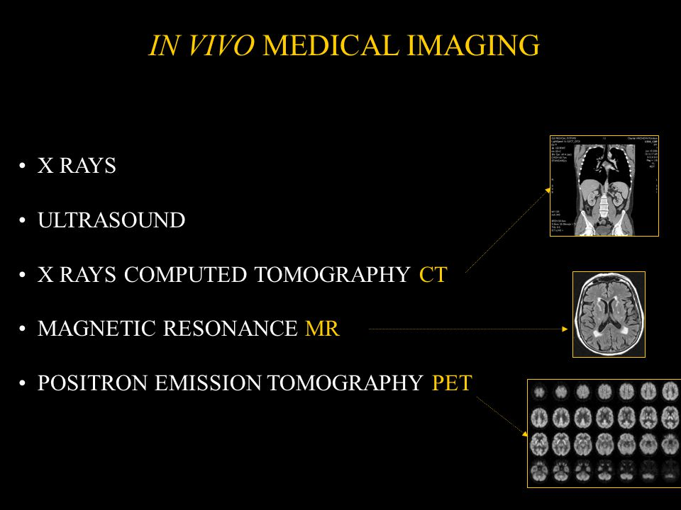 X RAYS ULTRASOUND X RAYS COMPUTED TOMOGRAPHY CT MAGNETIC RESONANCE MR POSITRON EMISSION TOMOGRAPHY PET IN VIVO MEDICAL IMAGING