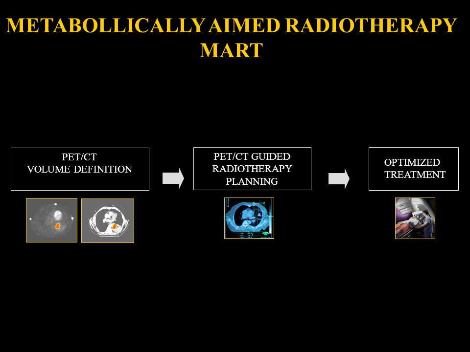OPTIMIZED TREATMENT PET/CT VOLUME DEFINITION PET/CT GUIDED RADIOTHERAPY PLANNING METABOLLICALLY AIMED RADIOTHERAPY MART