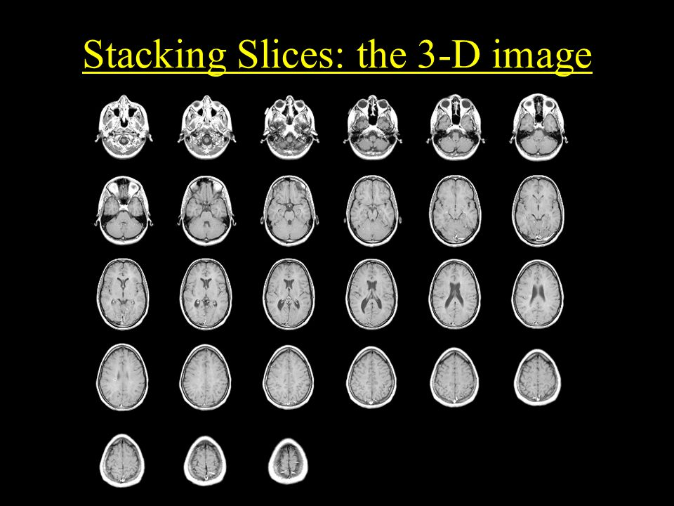 Stacking Slices: the 3-D image