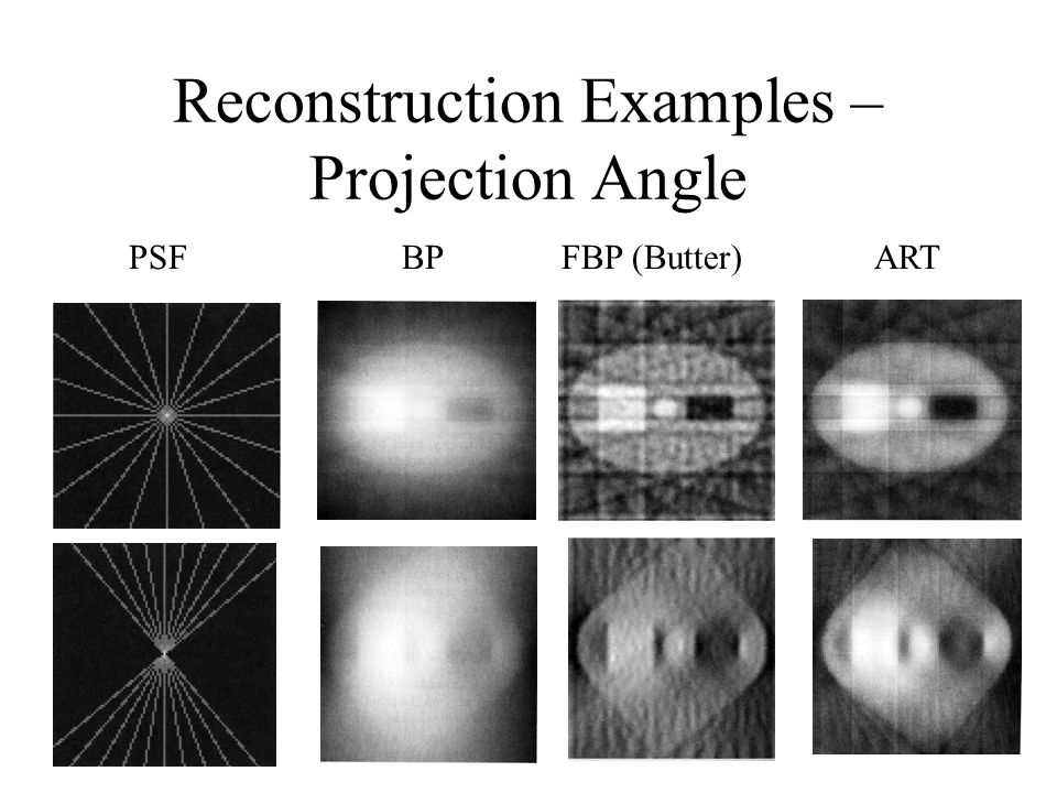 Reconstruction Examples – Projection Angle BPFBP (Butter)ARTPSF