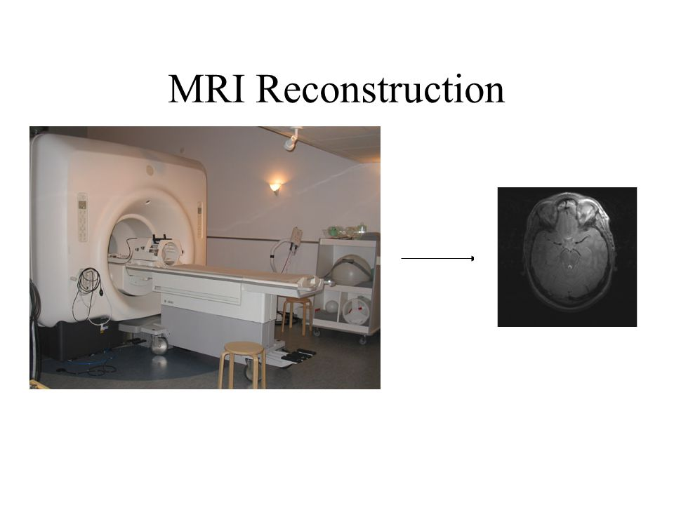 MRI Reconstruction