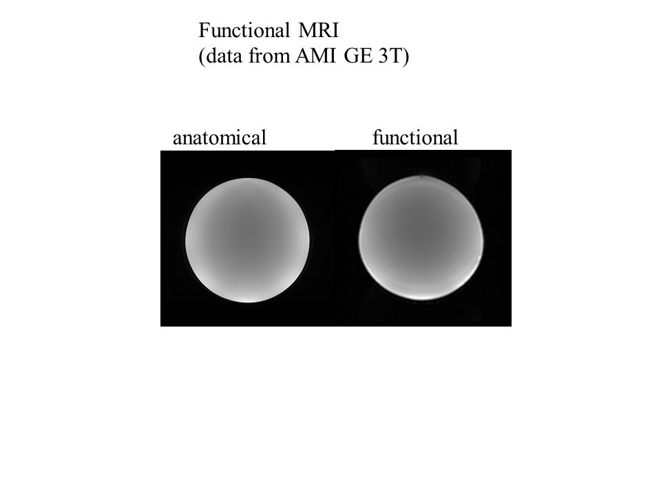 Functional MRI (data from AMI GE 3T) anatomicalfunctional
