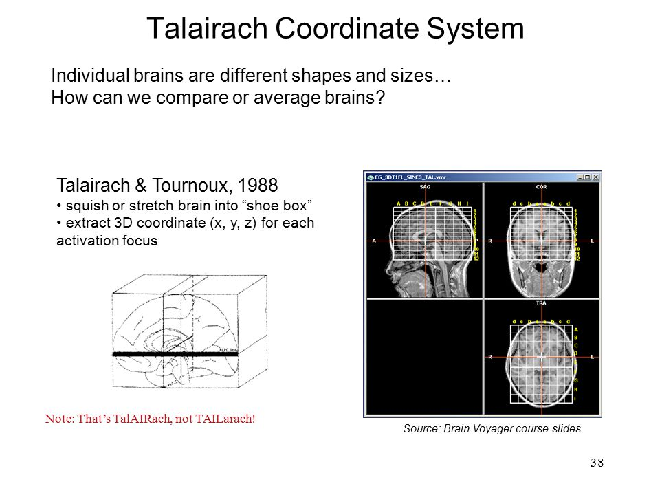 38 Talairach Coordinate System Source: Brain Voyager course slides Note: That's TalAIRach, not TAILarach! Individual brains are different shapes and s