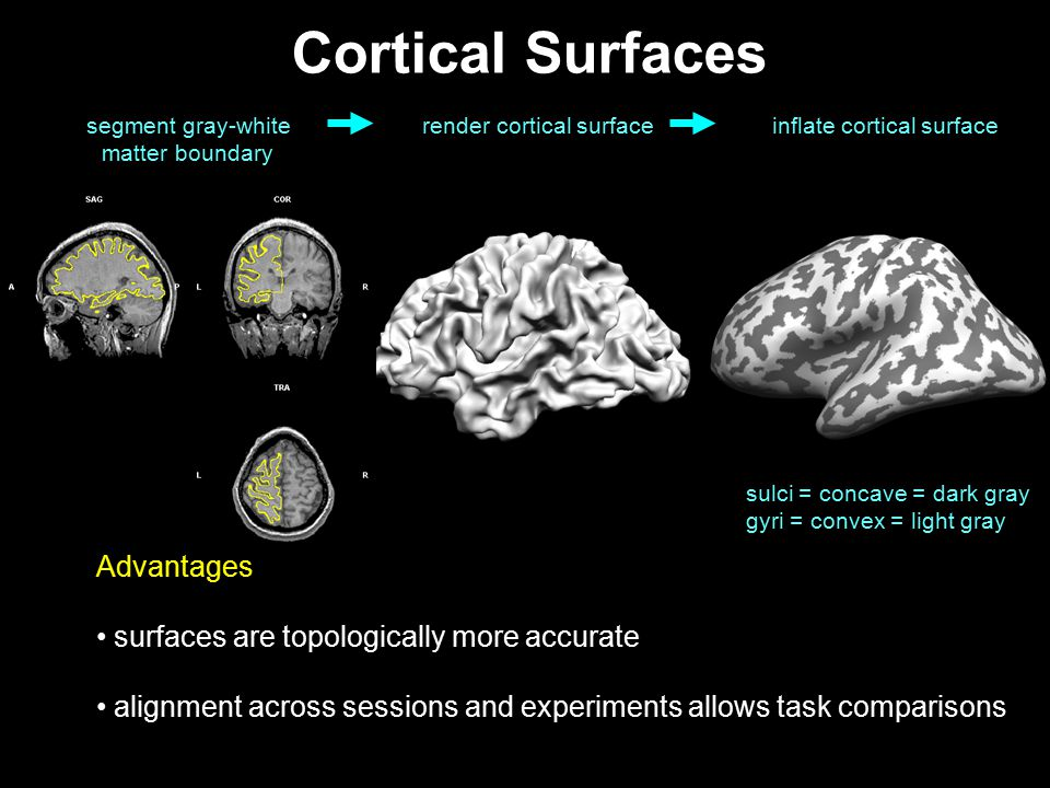 49 Cortical Surfaces segment gray-white matter boundary inflate cortical surface sulci = concave = dark gray gyri = convex = light gray render cortica