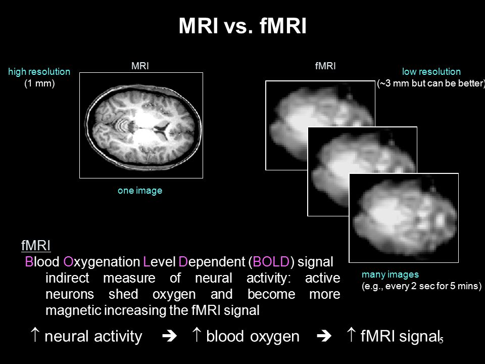5 MRI vs. fMRI  neural activity   blood oxygen   fMRI signal MRIfMRI one image many images (e.g., every 2 sec for 5 mins) high resolution (1 mm)