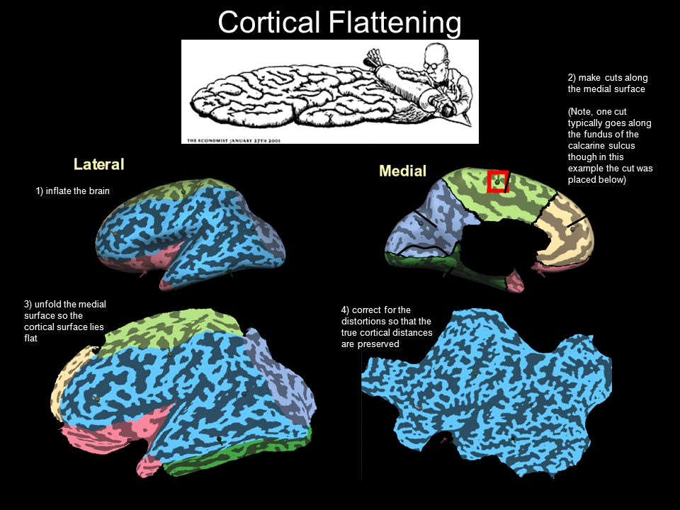 51 Cortical Flattening Source: Brain Voyager Getting Started Guide 2) make cuts along the medial surface (Note, one cut typically goes along the fundu