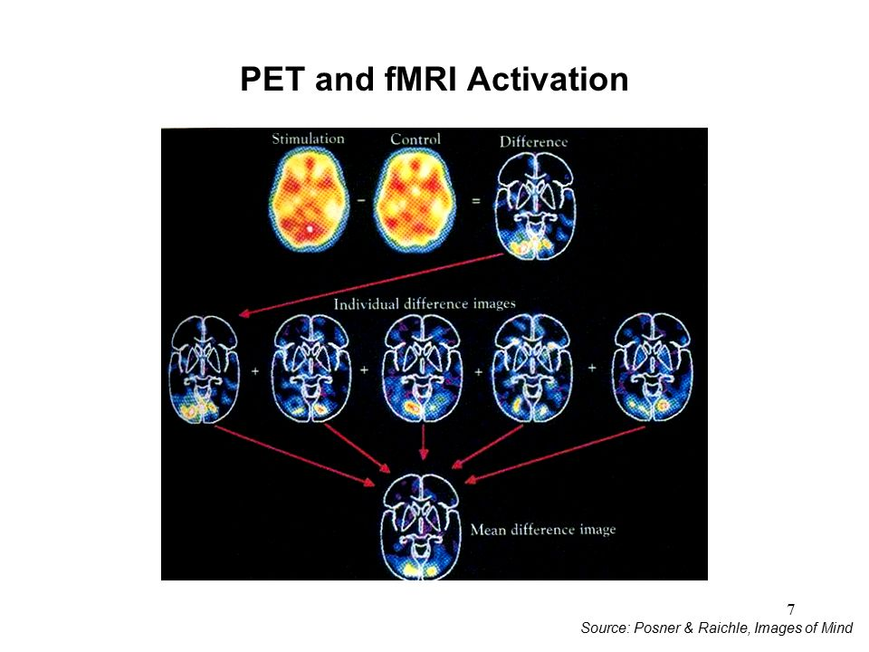 7 PET and fMRI Activation Source: Posner & Raichle, Images of Mind