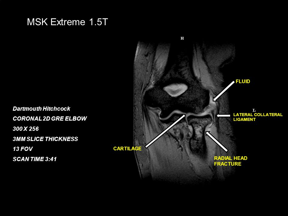 February 21, 200819 MSK Extreme 1.5T Dartmouth Hitchcock CORONAL 2D GRE ELBOW 300 X 256 3MM SLICE THICKNESS 13 FOV SCAN TIME 3:41 CARTILAGE LATERAL CO