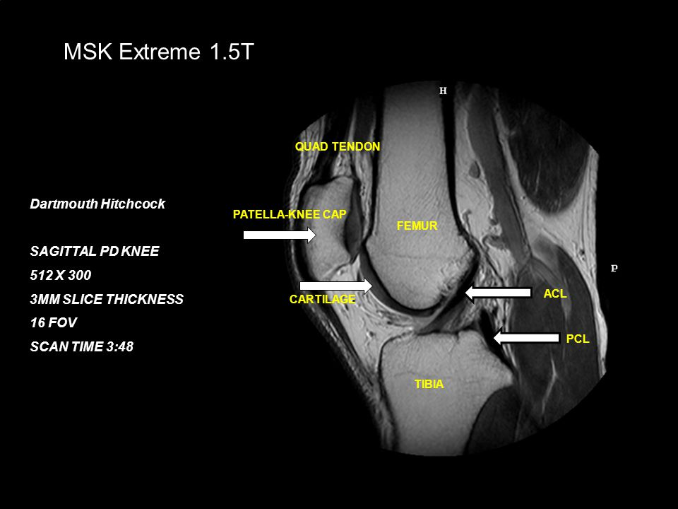 February 21, 20082 MSK Extreme 1.5T Dartmouth Hitchcock SAGITTAL PD KNEE 512 X 300 3MM SLICE THICKNESS 16 FOV SCAN TIME 3:48 ACL CARTILAGE PATELLA-KNE