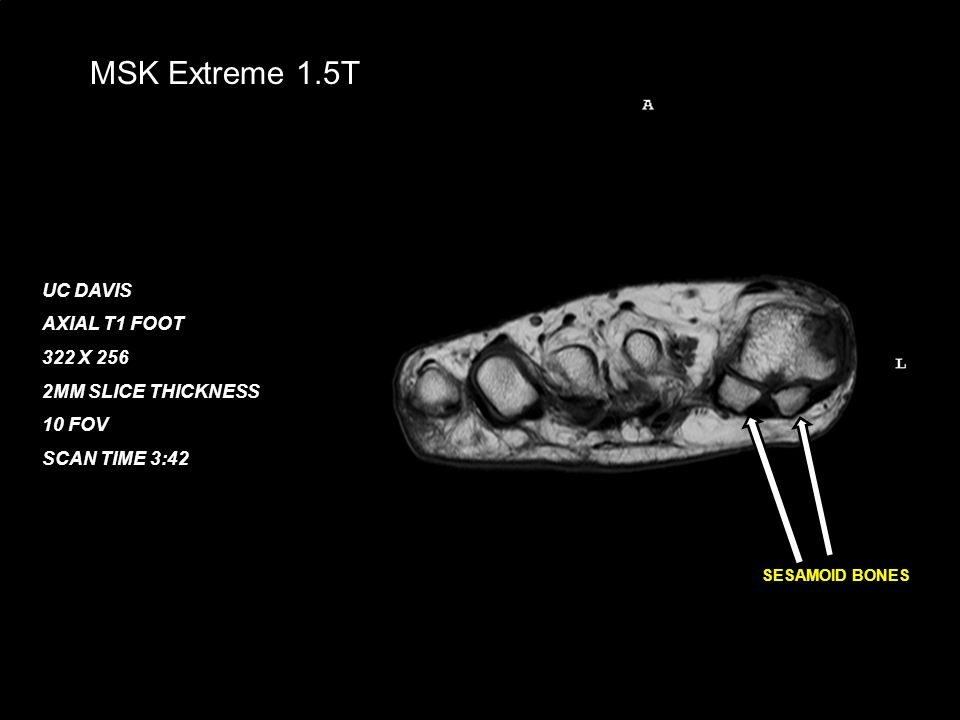 February 21, 200823 MSK Extreme 1.5T UC DAVIS AXIAL T1 FOOT 322 X 256 2MM SLICE THICKNESS 10 FOV SCAN TIME 3:42 SESAMOID BONES