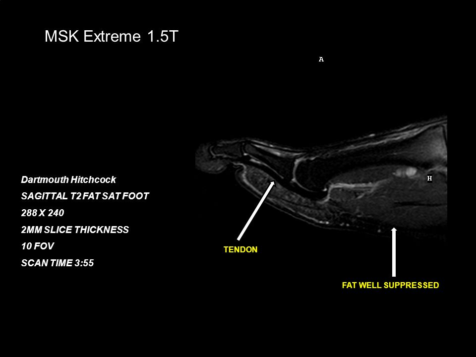 February 21, 200824 MSK Extreme 1.5T Dartmouth Hitchcock SAGITTAL T2 FAT SAT FOOT 288 X 240 2MM SLICE THICKNESS 10 FOV SCAN TIME 3:55 FAT WELL SUPPRES