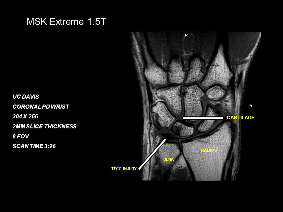 February 21, 200827 MSK Extreme 1.5T UC DAVIS CORONAL PD WRIST 384 X 256 2MM SLICE THICKNESS 8 FOV SCAN TIME 3:26 TFCC INJURY CARTILAGE RADIUS ULNA