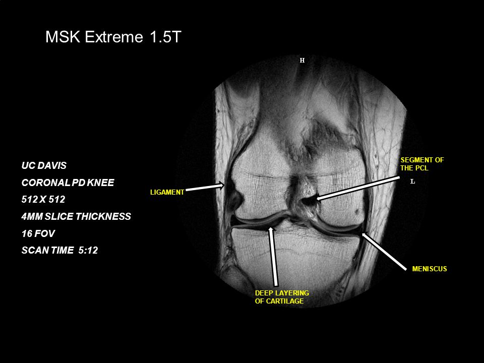 February 21, 200829 MSK Extreme 1.5T UC DAVIS CORONAL PD KNEE 512 X 512 4MM SLICE THICKNESS 16 FOV SCAN TIME 5:12 DEEP LAYERING OF CARTILAGE SEGMENT O