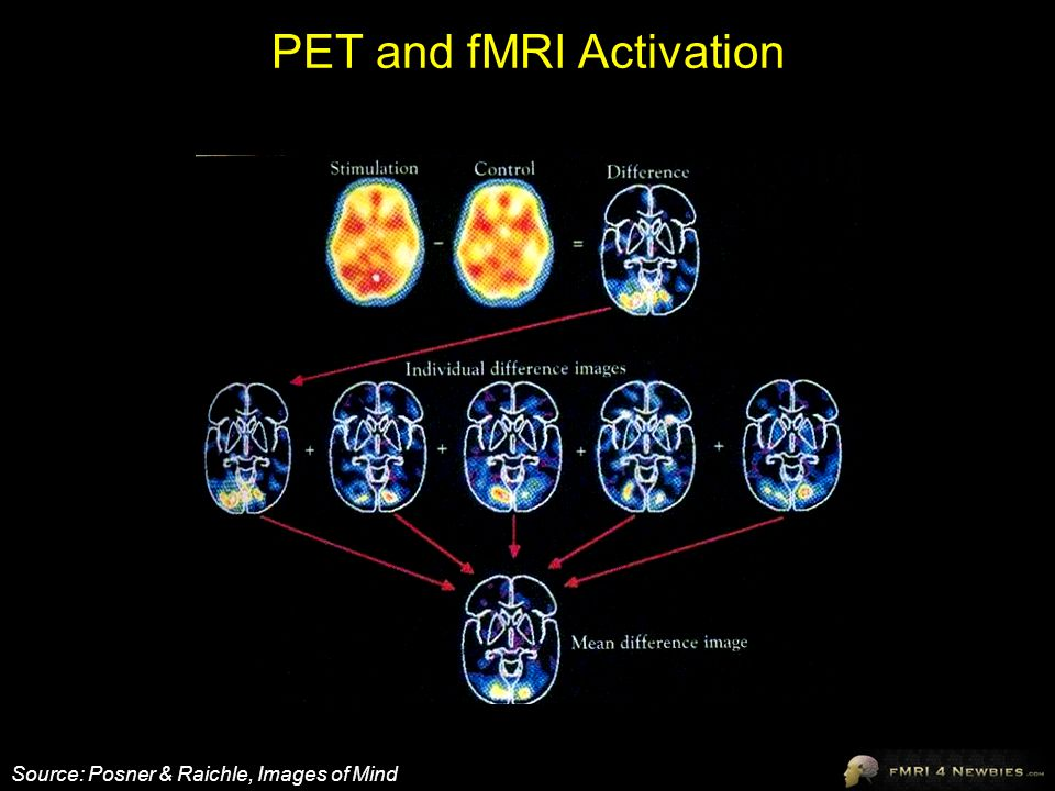 PET and fMRI Activation Source: Posner & Raichle, Images of Mind