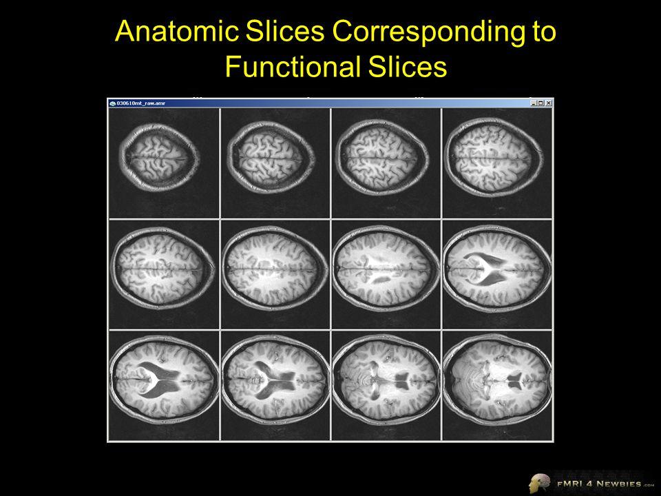 Anatomic Slices Corresponding to Functional Slices