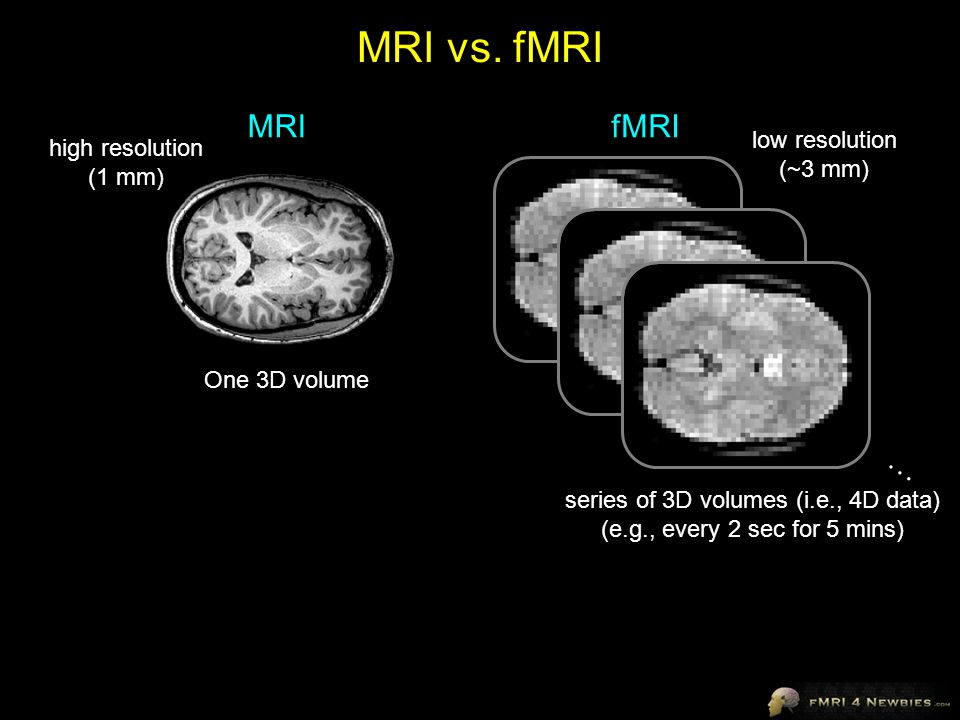 MRIfMRI One 3D volume series of 3D volumes (i.e., 4D data) (e.g., every 2 sec for 5 mins) high resolution (1 mm) low resolution (~3 mm) … MRI vs.