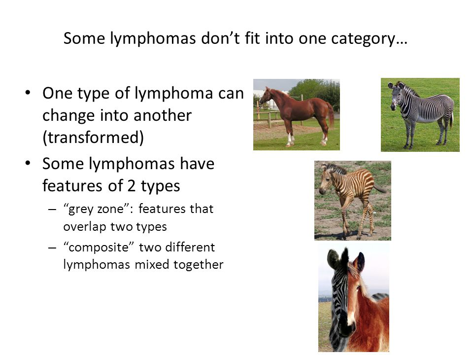 "Some lymphomas don't fit into one category… One type of lymphoma can change into another (transformed) Some lymphomas have features of 2 types – ""grey"