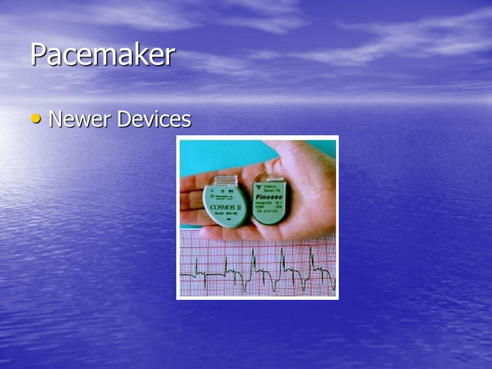 Pacemaker Newer Devices Newer Devices