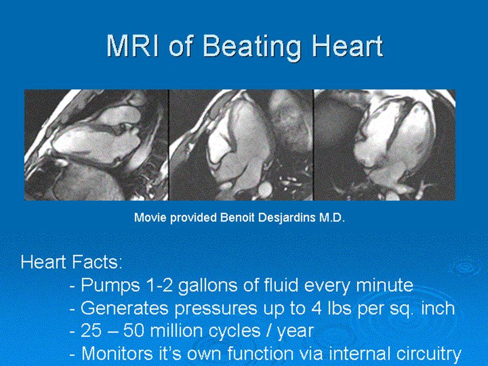 MRI Images Cardiac Imaging Cardiac Imaging