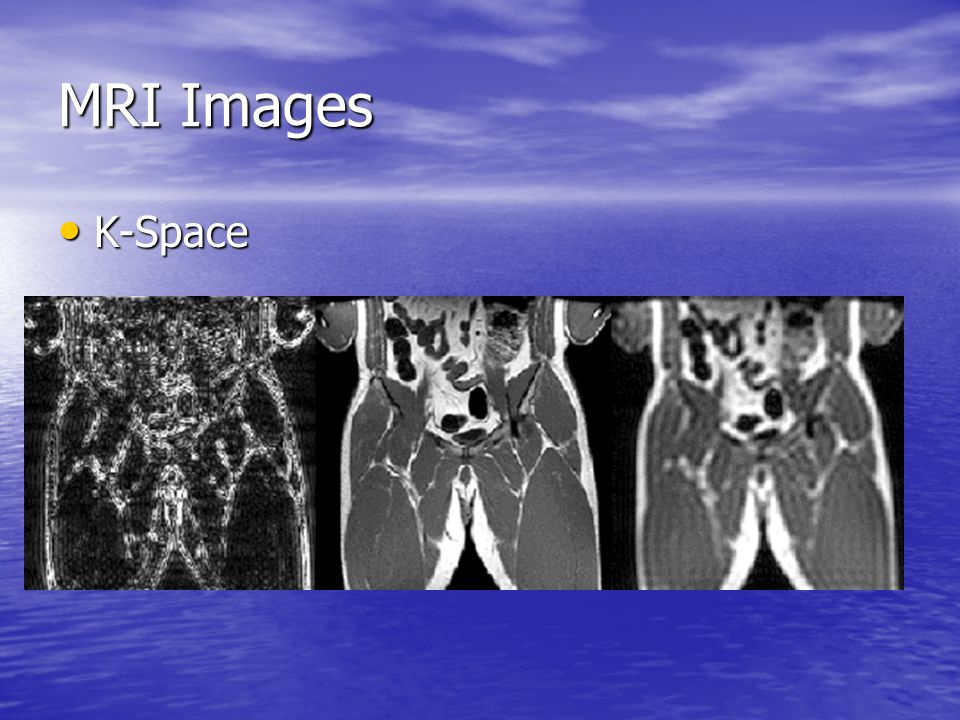 MRI Images K-Space K-Space