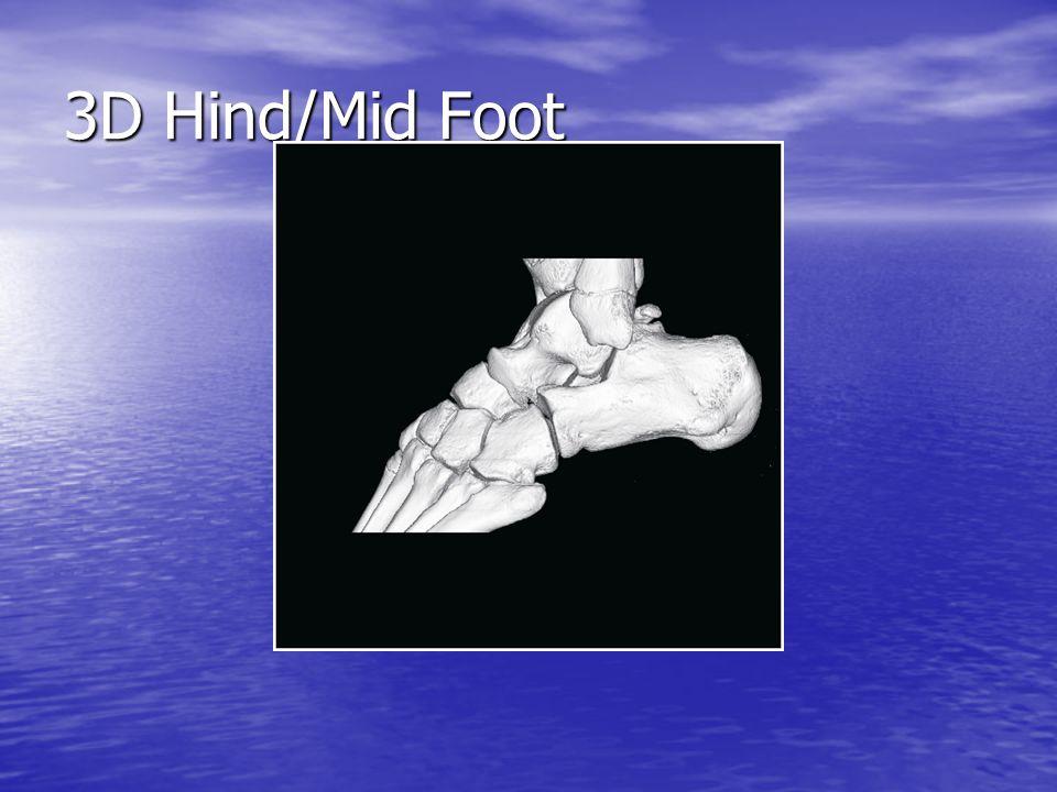 3D Hind/Mid Foot