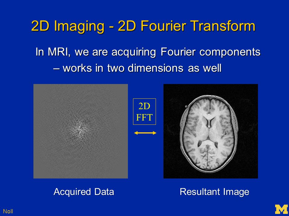 Noll 2D Imaging - 2D Fourier Transform 2D FFT Acquired Data Resultant Image In MRI, we are acquiring Fourier components – works in two dimensions as well