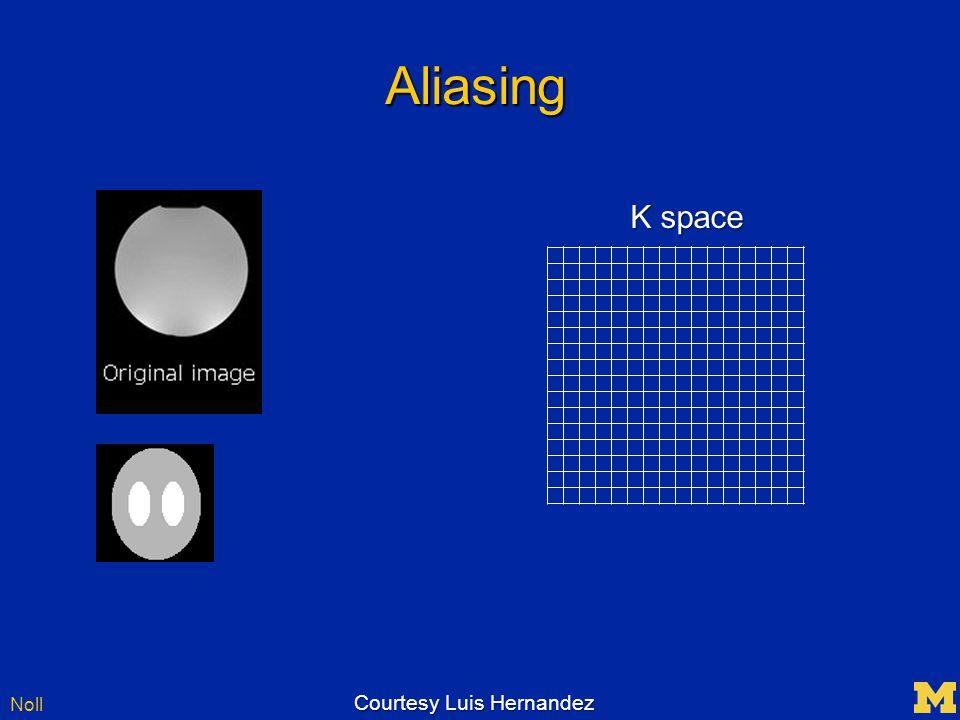 Noll Aliasing K space Courtesy Luis Hernandez