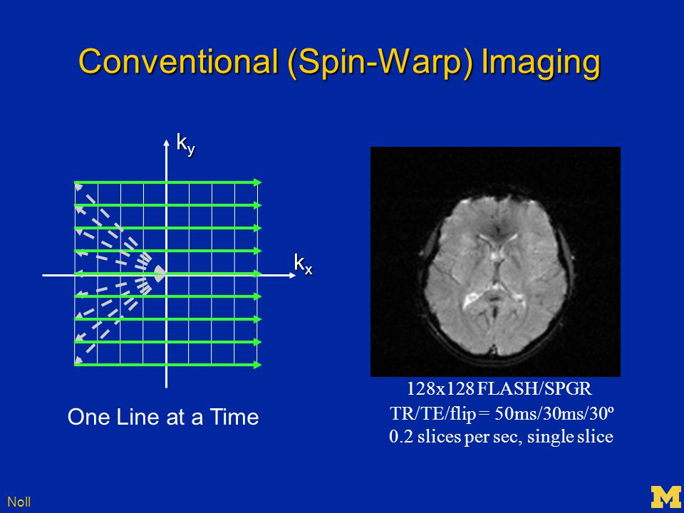 Noll Conventional (Spin-Warp) Imaging kxkxkxkx kykykyky 128x128 FLASH/SPGR TR/TE/flip = 50ms/30ms/30º 0.2 slices per sec, single slice One Line at a Time