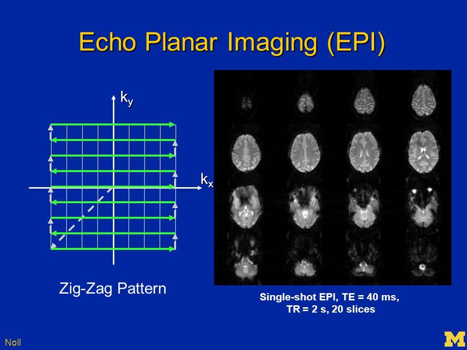 Noll Echo Planar Imaging (EPI) kxkxkxkx kykykyky Single-shot EPI, TE = 40 ms, TR = 2 s, 20 slices Zig-Zag Pattern