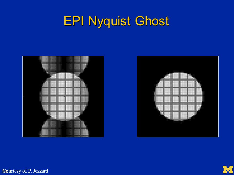 Noll EPI Nyquist Ghost Courtesy of P. Jezzard