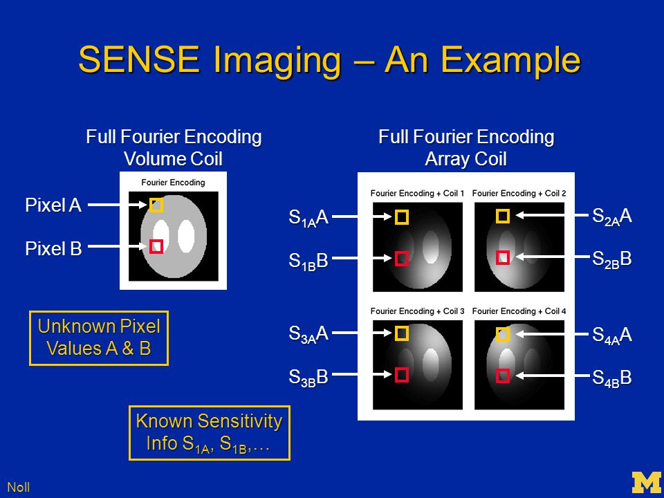 Noll SENSE Imaging – An Example Full Fourier Encoding Volume Coil Pixel A Pixel B Full Fourier Encoding Array Coil S 1A A S 1B B S 3A A S 3B B S 2A A S 2B B S 4A A S 4B B Unknown Pixel Values A & B Known Sensitivity Info S 1A, S 1B,…