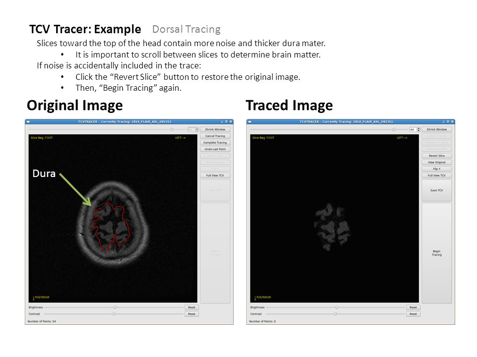 TCV Tracer: Example Original ImageTraced Image Slices toward the top of the head contain more noise and thicker dura mater.