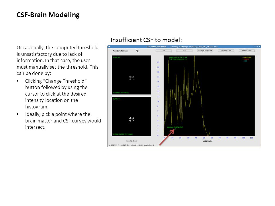CSF-Brain Modeling Occasionally, the computed threshold is unsatisfactory due to lack of information. In that case, the user must manually set the thr