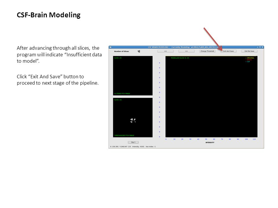 """CSF-Brain Modeling After advancing through all slices, the program will indicate """"Insufficient data to model"""". Click """"Exit And Save"""" button to proceed"""