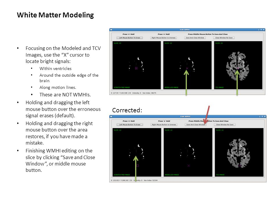 """White Matter Modeling Focusing on the Modeled and TCV Images, use the """"X"""" cursor to locate bright signals: Within ventricles Around the outside edge o"""